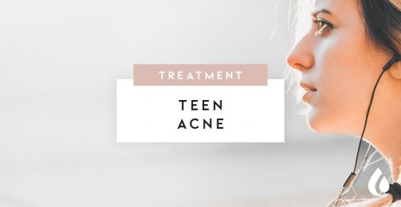 How to treat juvenile acne